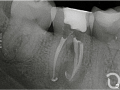 caso 3 endodoncia 2 clinica dental diaz lopez