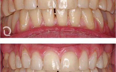 Blanqueamiento dental,  preguntas y respuestas