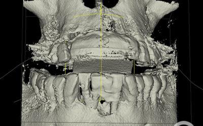 Regeneración de cresta mandibular zona anterior
